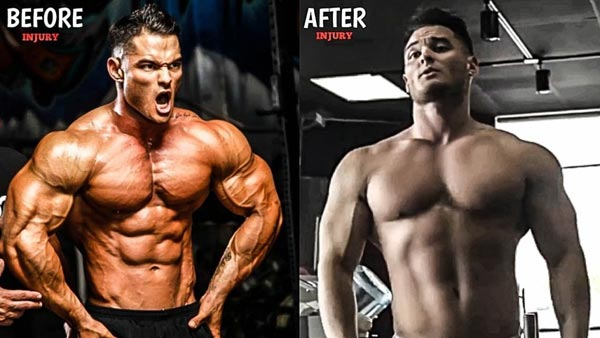Calum Von Moger Before And After Injury