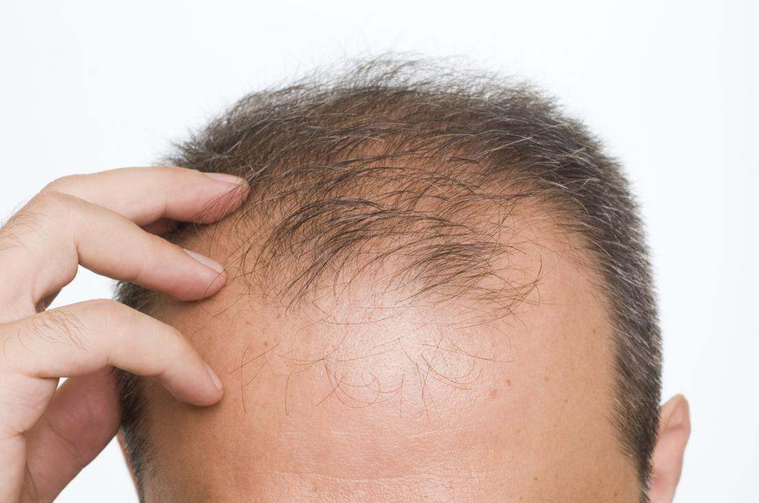 Folexin Treats Hair Loss